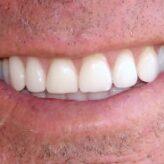 Zubní kámen